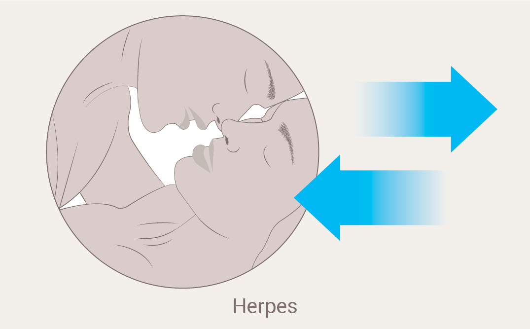 Having the herpes virus makes sexual transmission of HIV more likely.