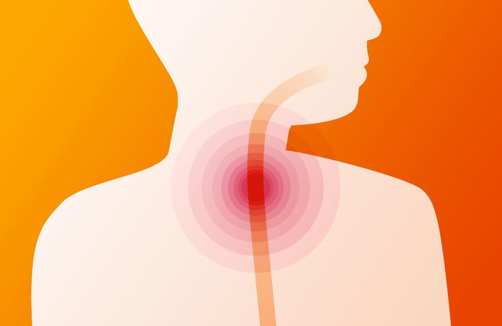 Management of swallowing problems (oesophageal disorders) in people