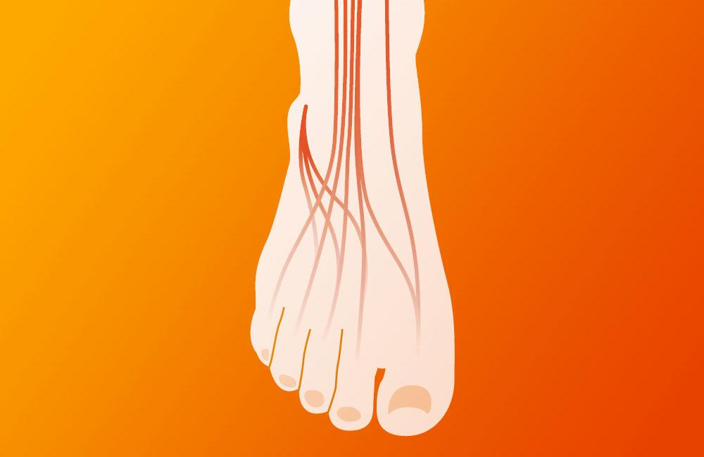 Peripheral neuropathy in people with HIV in resource-limited