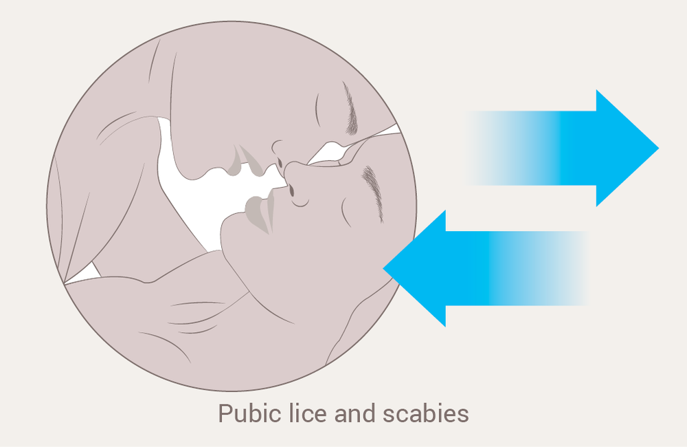 Pubic lice and scabies | aidsmap
