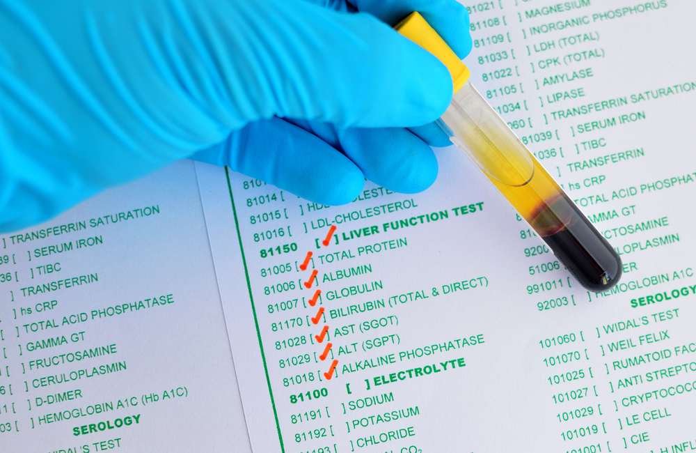 ast sgot blood test