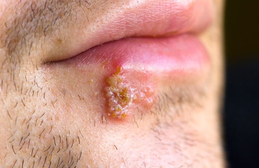 herpes on rectal area pictures