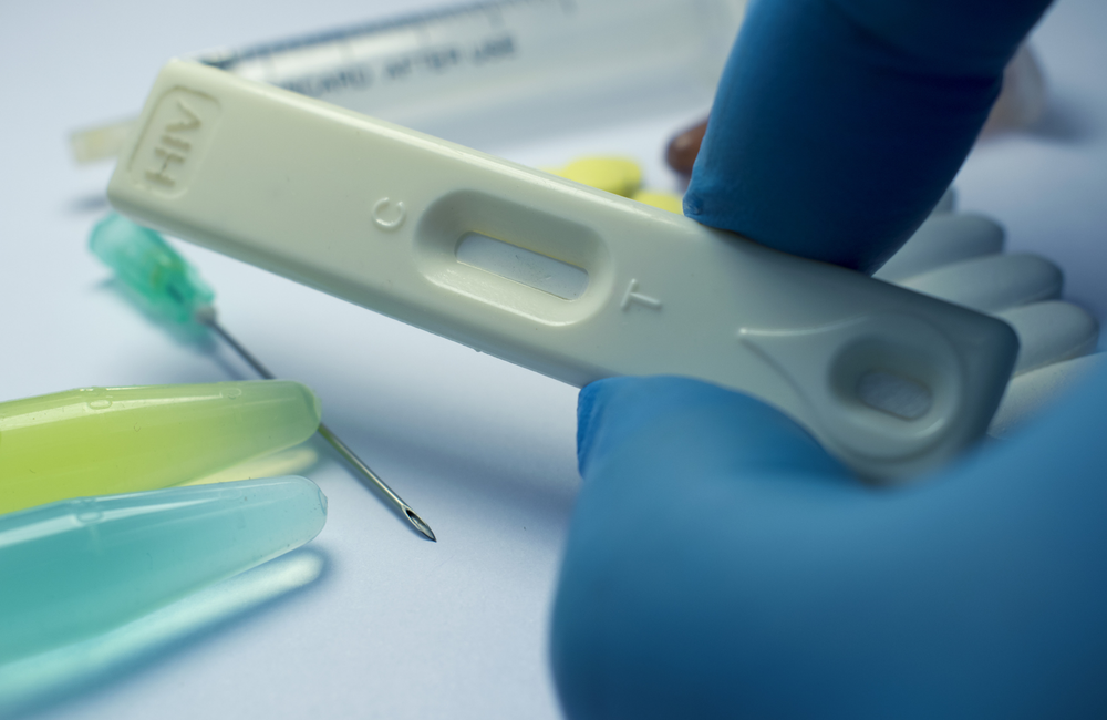 How accurate are rapid, point-of-care tests for HIV? | aidsmap